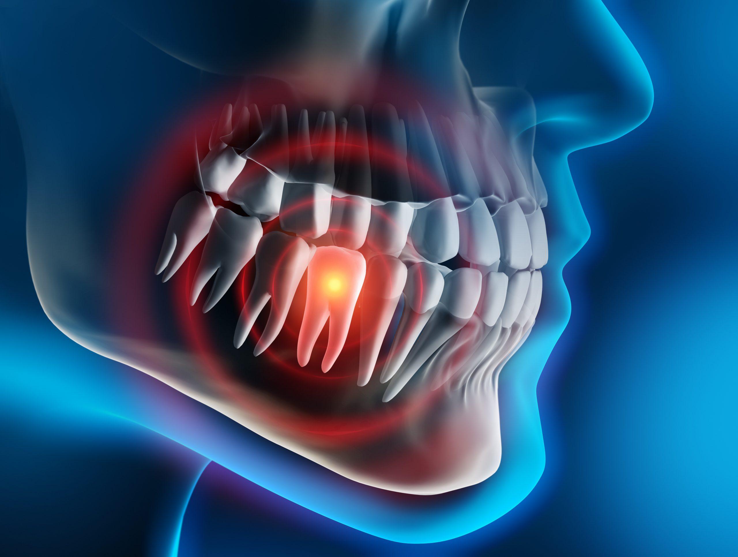 Profis für Zahnherde und Störfelder