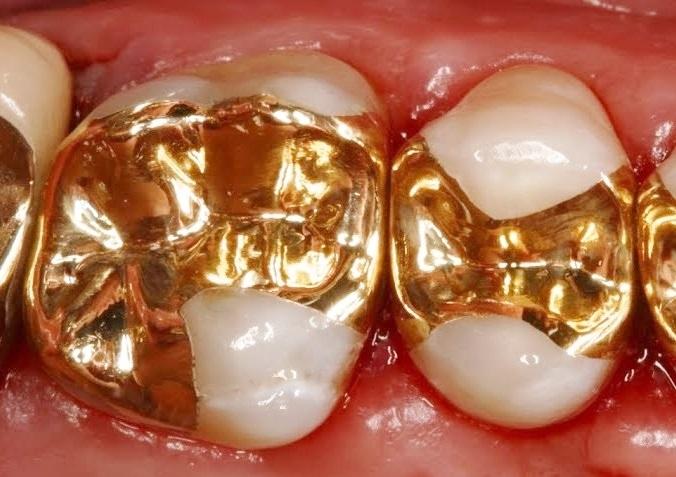 gold-onlay-zahnarztpraxis-arkaden