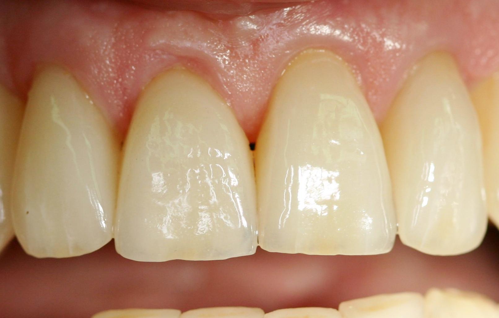 Zahnfüllungen, Kronen & Brücken