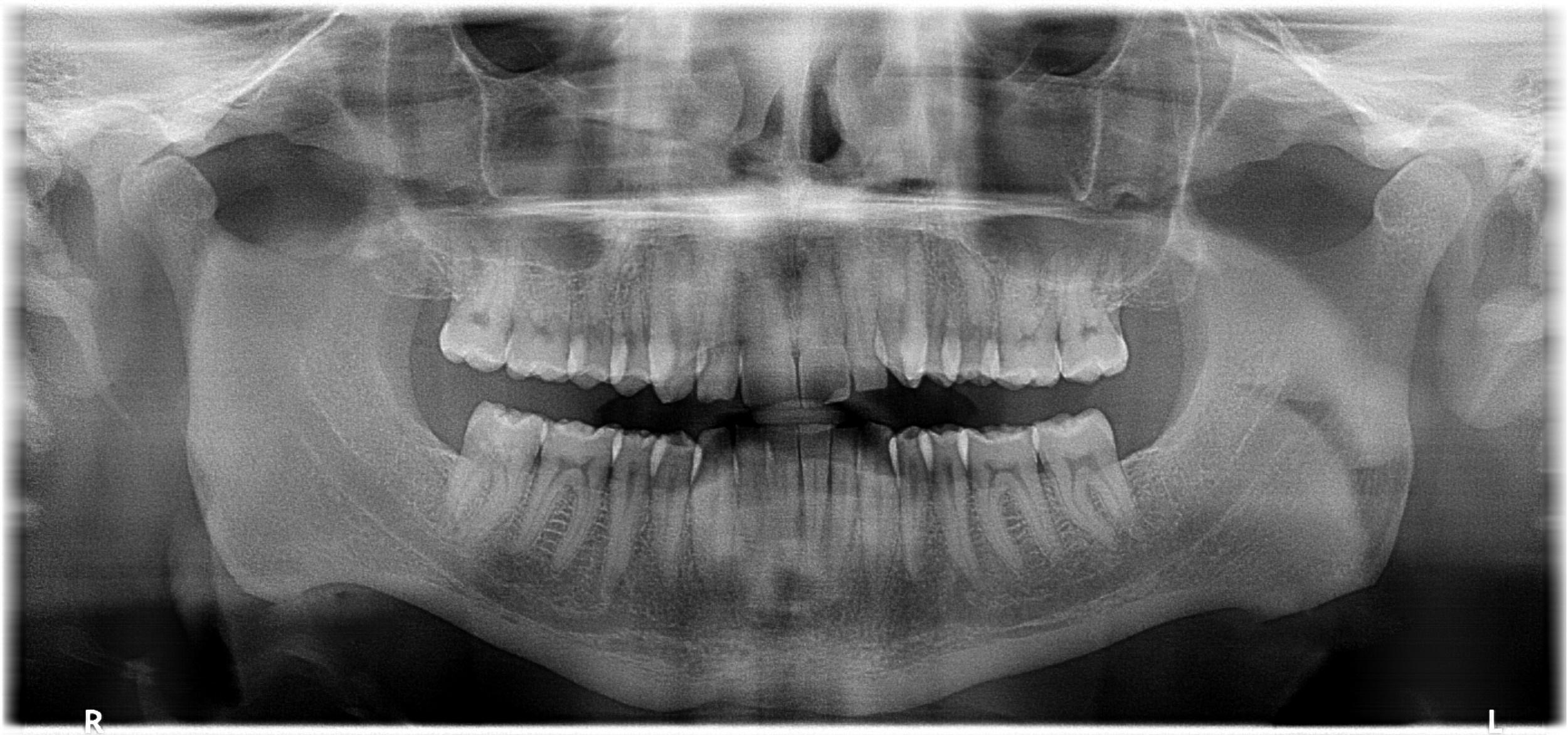 Das Panorama-Röntgenbild