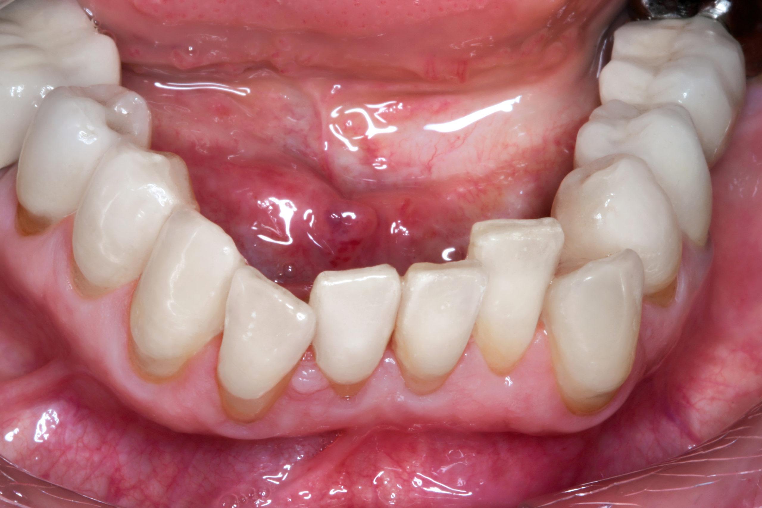 alphalign-uk-vor-zahnarztpraxis-arkaden