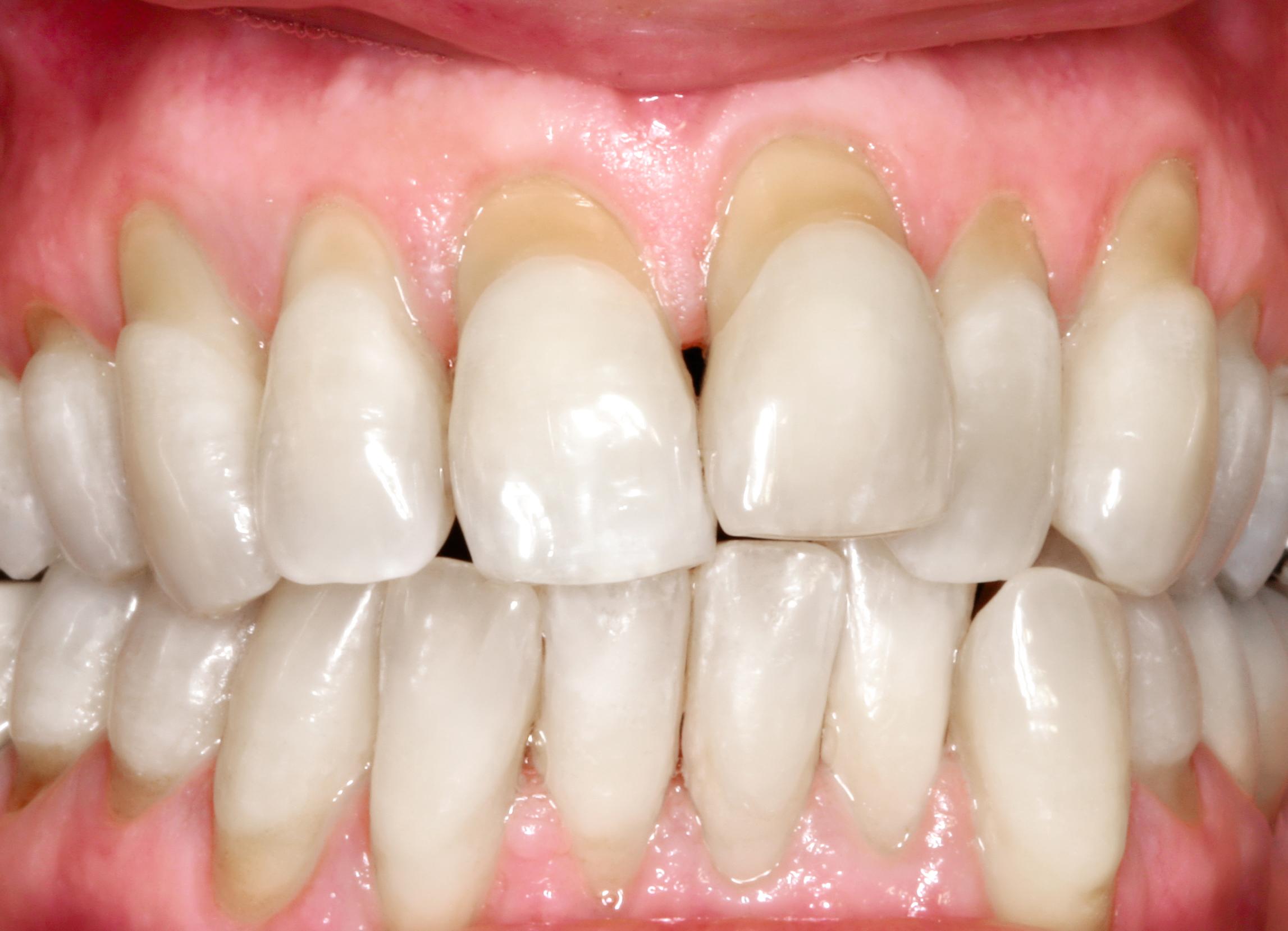 alphalign-ok-vor-zahnarztpraxis-arkaden