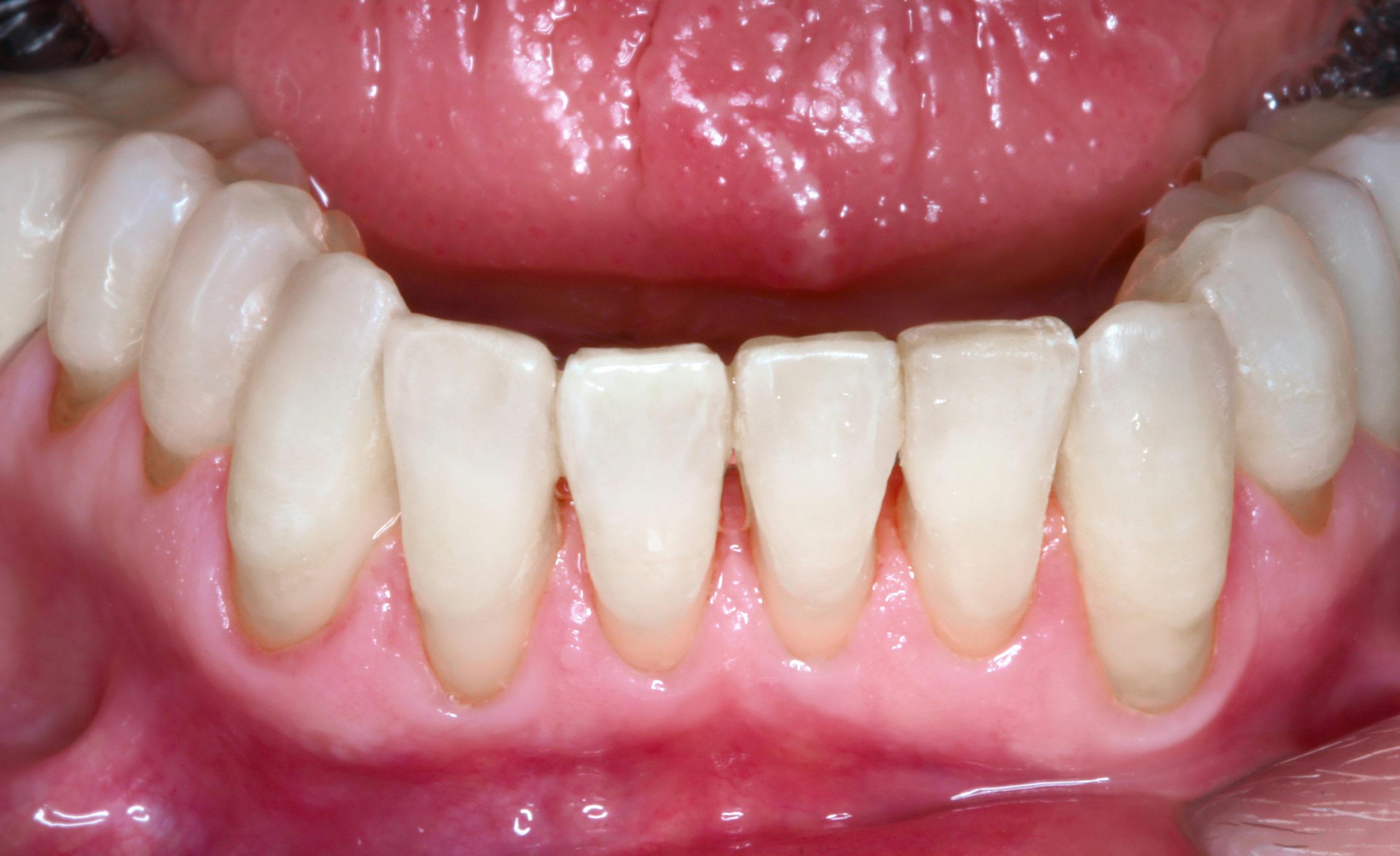 alphalign-uk-nach-zahnarztpraxis-arkaden