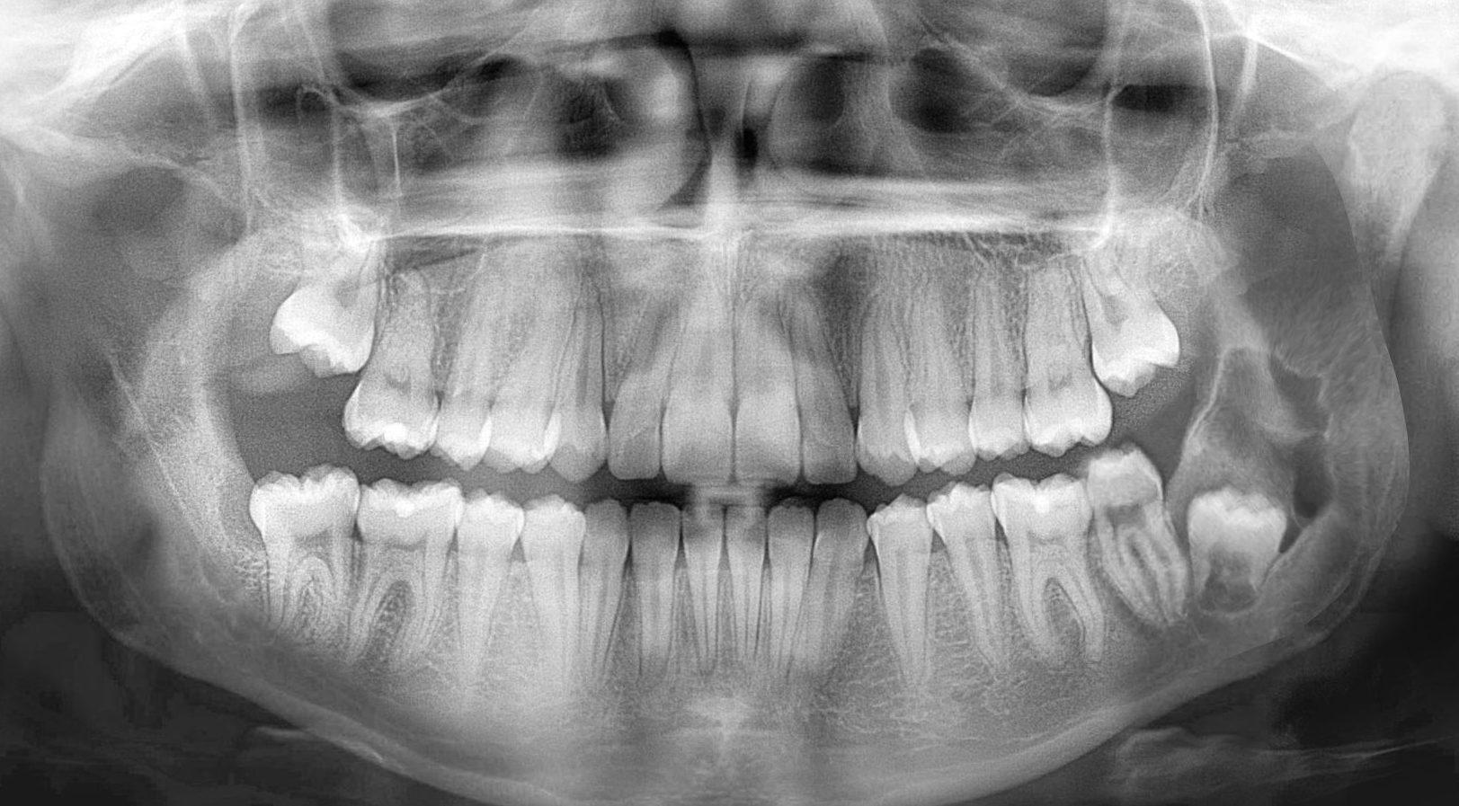 OPG-Follikularzyste-38-zahnarztpraxis-arkaden